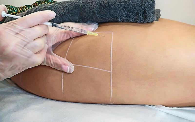 Mesoterapia infiltrada para disolver la grasa localizada