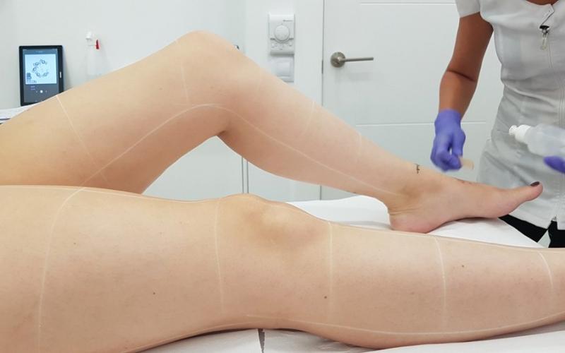 7 beneficios de la depilación láser diodo médico