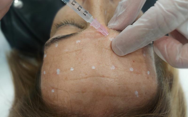 Toxina botulínica para eliminar las líneas de expresión sin dolor